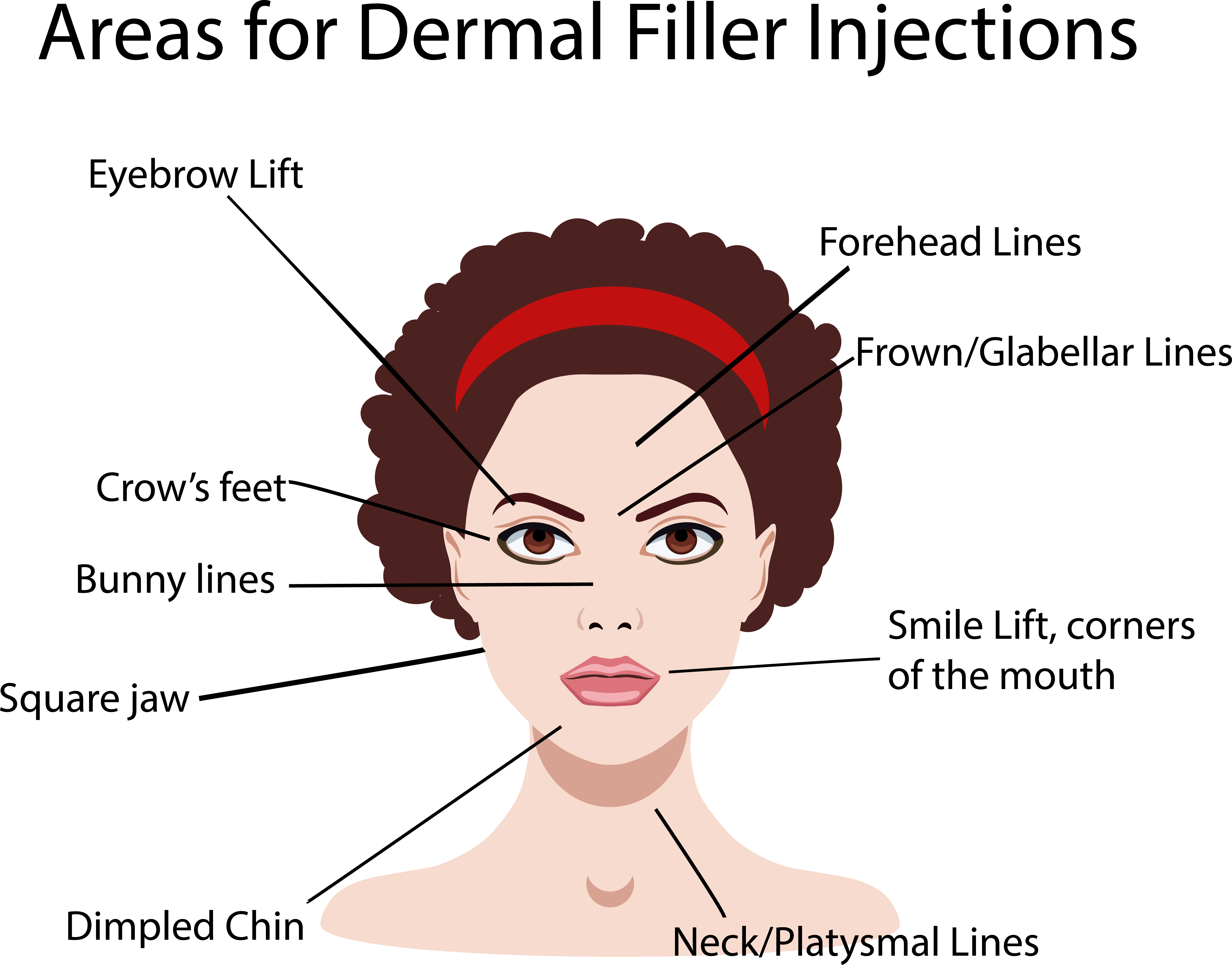 Dermal Fillers: The Ultimate Guide for Uses, Recovery and