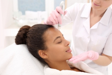 Is Microneedling Safe For Skin of Color?