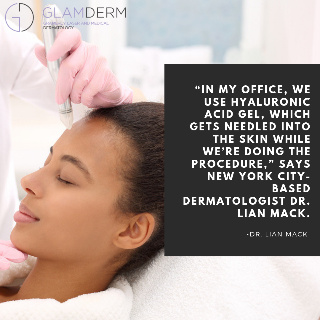 """""""In my office, we use hyaluronic acid gel, which gets needled into the skin while we're doing the procedure,"""" says New York City-based dermatologist Dr. Lian Mack."""
