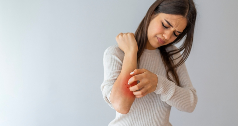 All About Eczema