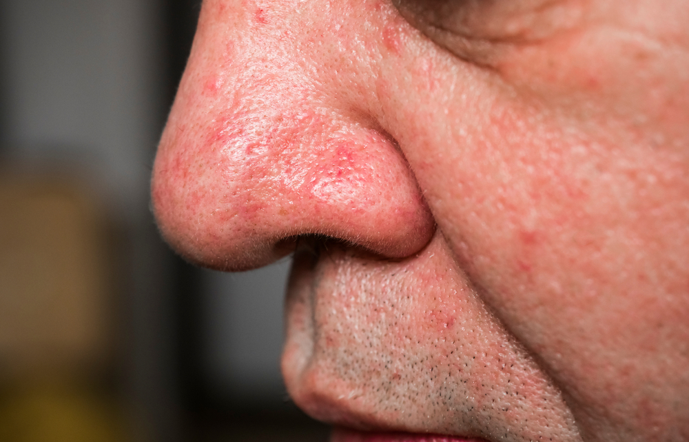 Facial Vein Treatments For Men