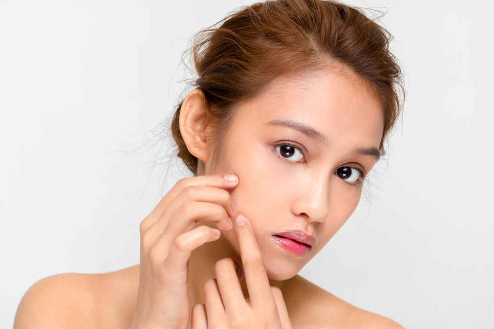 Treating Acne in NYC